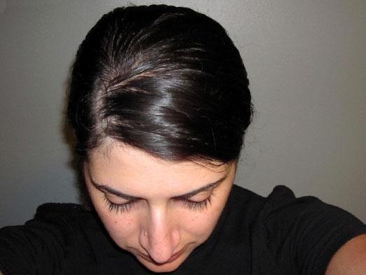Що робити, якщо волосся швидко жирніє?