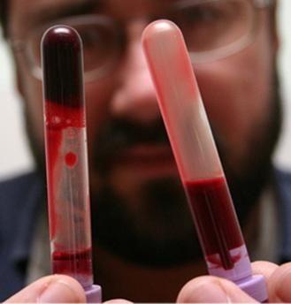 норма фібриногену в крові