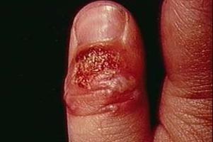 Герпетична інфекція лікування