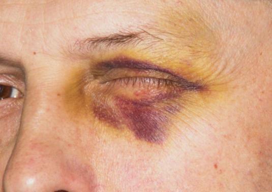 Як позбутися від синяка під оком?