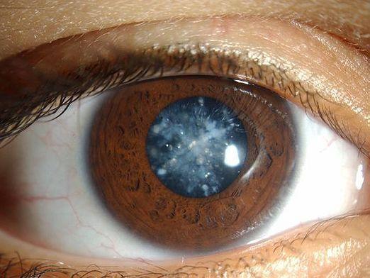 Як лікувати катаракту?