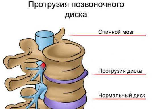 Як лікувати протрузию хребта?