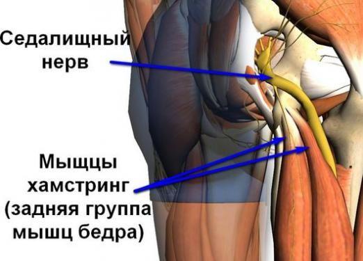 Як лікувати сідничний нерв?