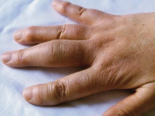 Як зняти набряк з пальця?