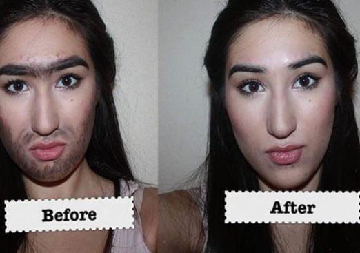 Як видалити волосся на обличчі?
