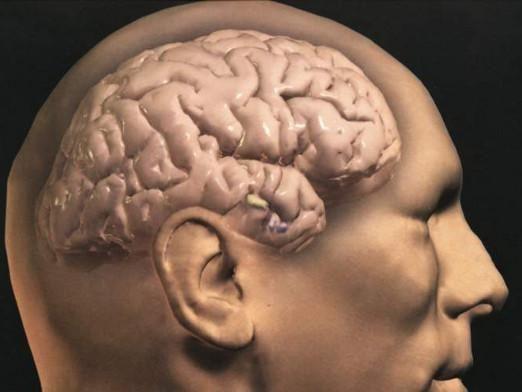 Як виглядає мозок?