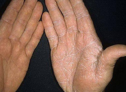 Як вилікувати грибок на руках?