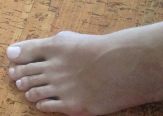 Як вилікувати кісточку на нозі?