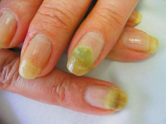 Як вилікувати нігті?