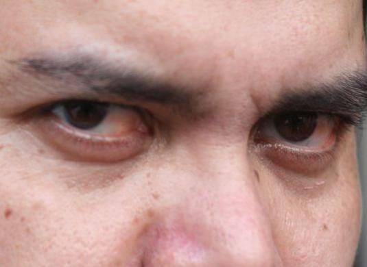 Червоні очі, що робити?
