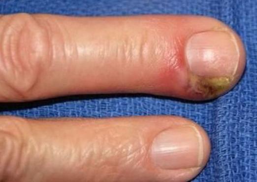 Наривається палець: що робити?