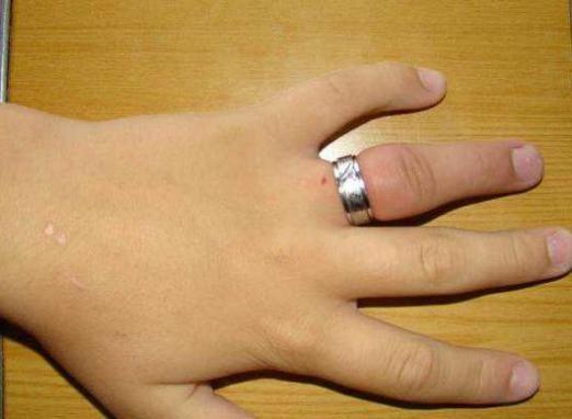 Набряк палець: як зняти кільце?