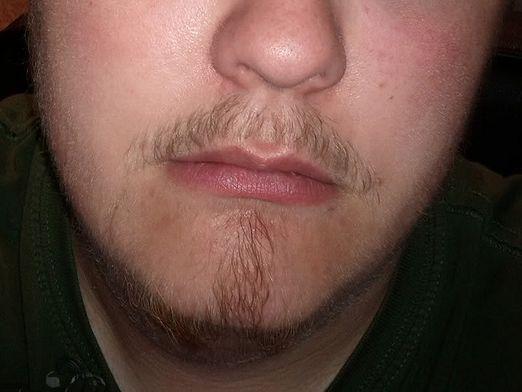 Чому не росте борода?