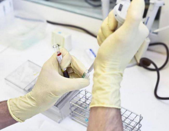 норма з реактивного білка в крові