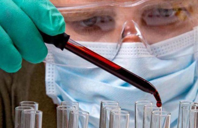 з реактивний білок норма у жінок